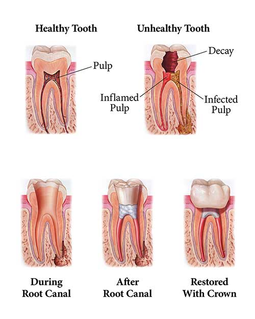Root Canal Illustration